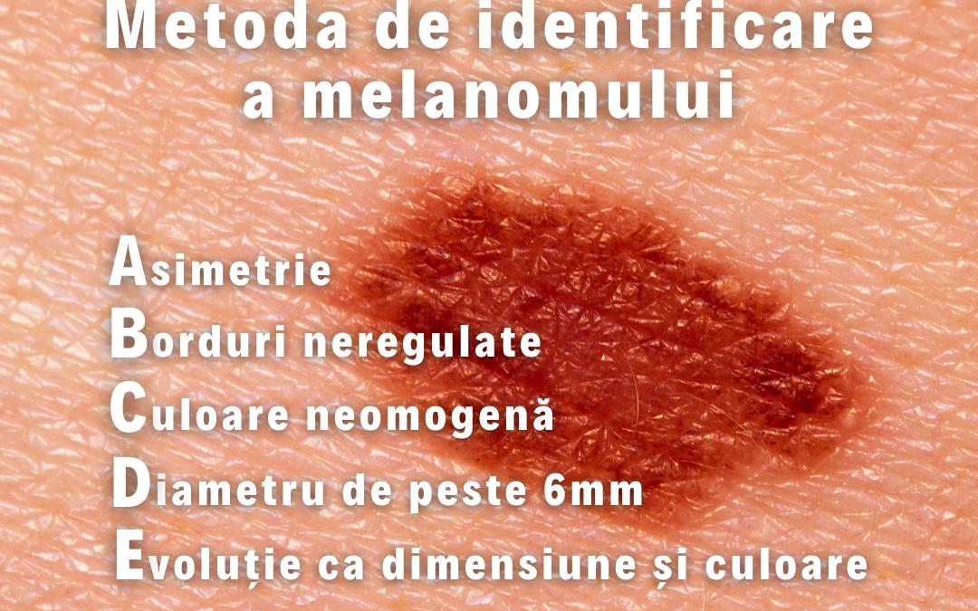 Campanie de informare privind regula ABCDE de control al alunițelor de pe piele
